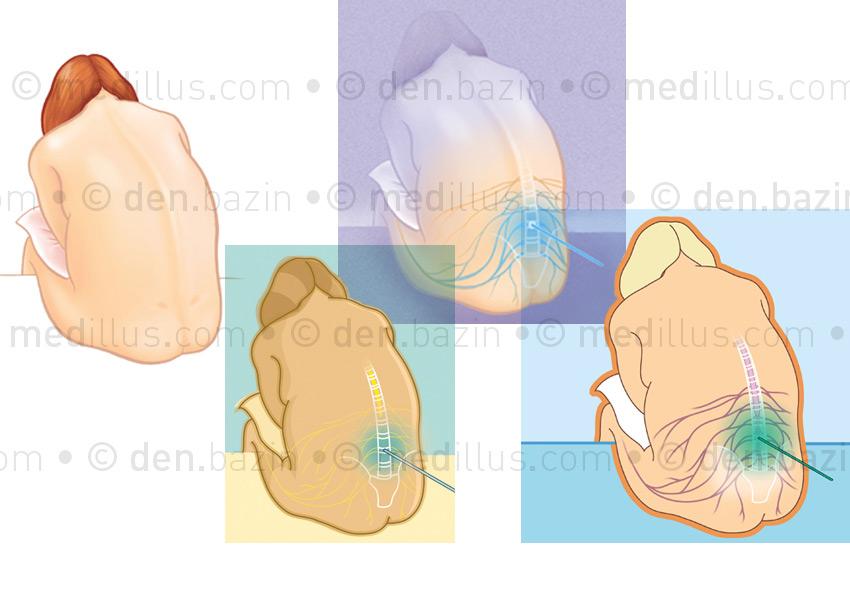 Péridurale