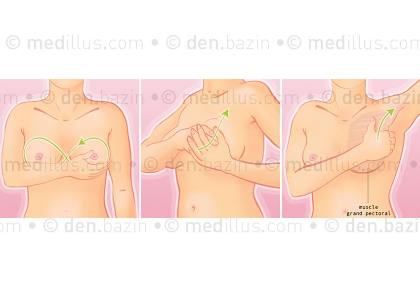 Autopalpation des seins