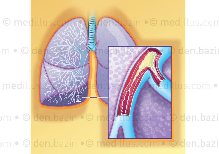 Asthme du nourrisson