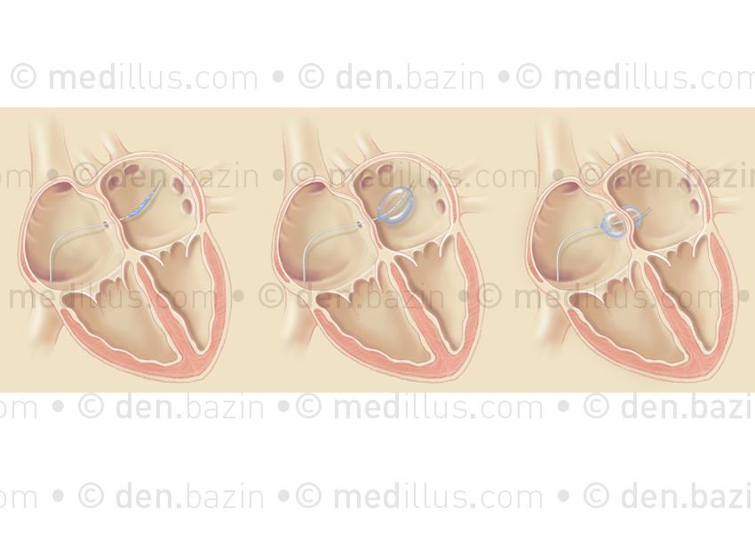 Maintien de la communication interauriculaire par chirurgie des ballonnets