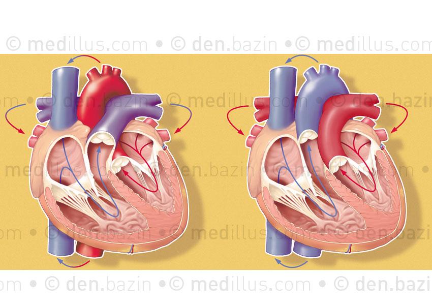 Cœur normal et transposition des gros vaisseaux