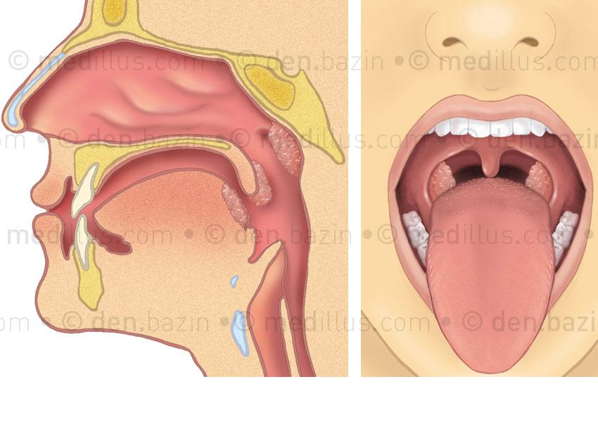 Amygdales de profil et de face