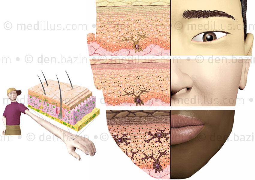 Coupe de peau et pigmentation