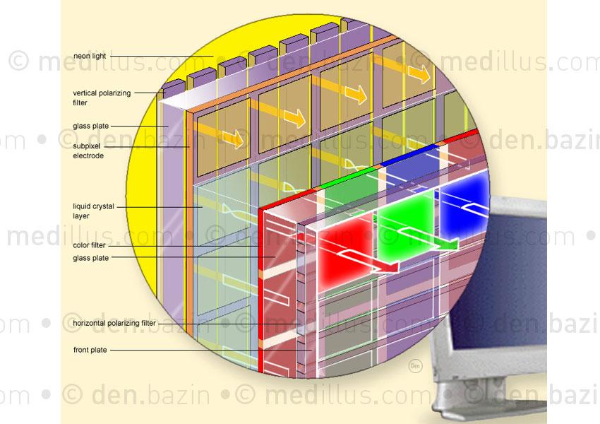 Ecran plat LCD