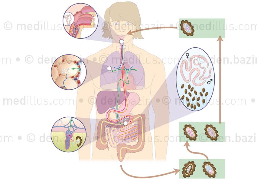 Cycles des ascaris et atteintes de l'ascaridiase