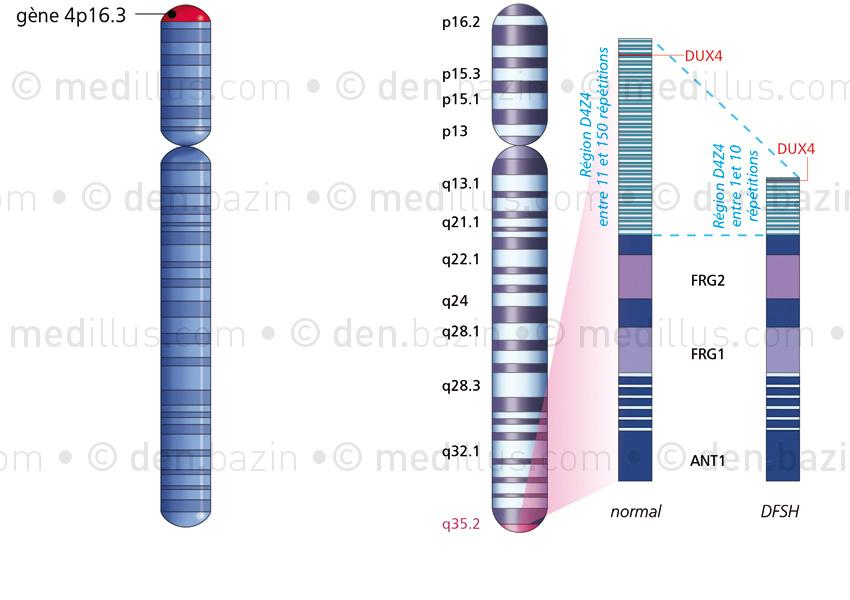 Gènes du nanisme et de la dystrophie FSH sur le chromosome 4