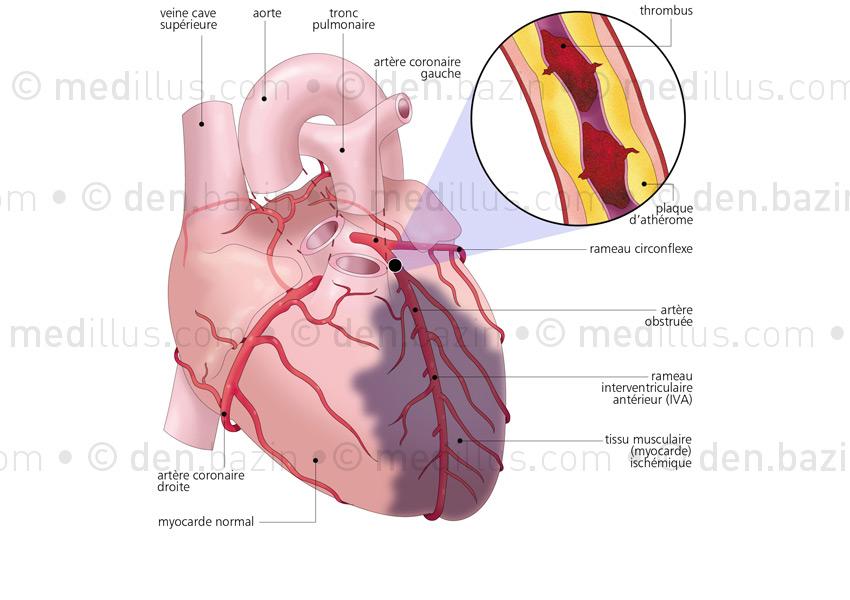 Ischémie provoquant un infarctus