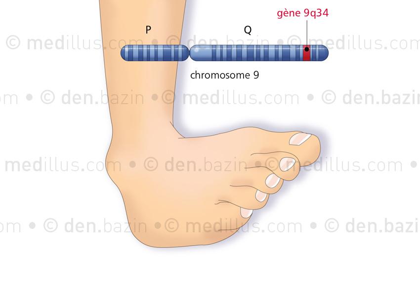 La dystonie idiopathique et son gène sur le chromosome 9