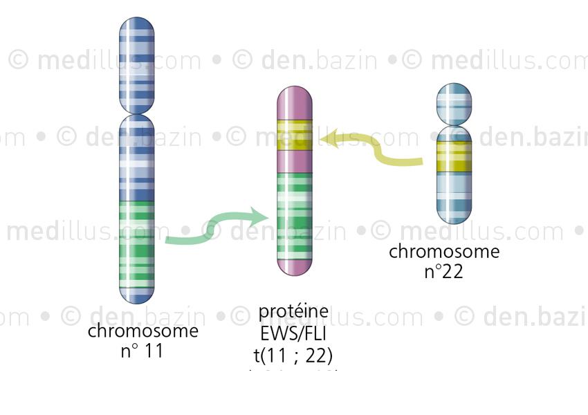 Translocation de gènes dans la maladie d'Ewing